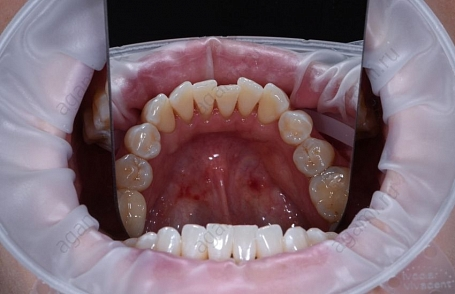 экспресс отбеливание зубов отзывы